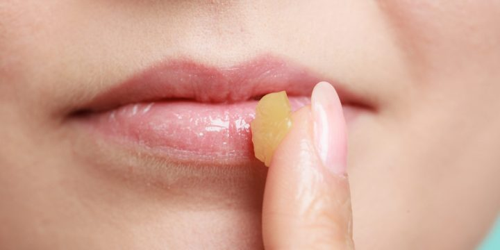 Coming From Being without To Luscious – What To Search for In A Lip Balm